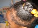 Alopecie chez l'enfant